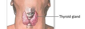 سرطان غده تیروئید، سرطانی خوش خیم/ دکتر پرویز قدیریان