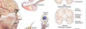 ویتامینی مفید برای بیماری آلزایمرز/ دکتر پرویز قدیریان