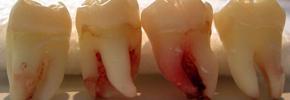 شناسایی سلول بنیادی در دندان عقل/ دکتر پرویز قدیریان