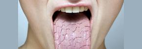 علل بروز و چگونگی درمان خشکی دهان/ دکتر پرویز قدیریان