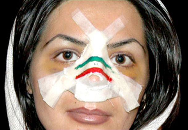 حجاب اجباری با زنان و دختران ایرانی چه کرده است؟/مجید محمدی