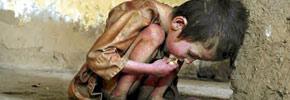 به مناسبت روز جهانی غذا/ دکتر پرویز قدیریان
