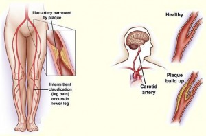 Hyperlipidemia-Symptoms