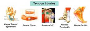صدمات وارده به عضلات در ورزش/ دکتر عطا انصاری