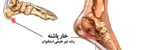 دردهای کف پا و خار پاشنه ای/ دکتر عطا انصاری