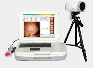رونمایی از اولین دستگاه پورتابل دیجیتال ماموگرافی در کانادا