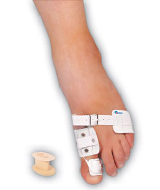 Hallux_valgus-treatment