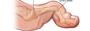 انگشت چکشی/دکتر عطا انصاری