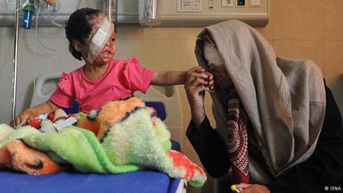 مرگ سمیه، قربانی اسیدپاشی همسر