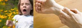 آلرژی یا حساسیت چیست؟/دکتر عطا انصاری