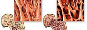 استئوپروز یا پوکی استخوان/ دکتر عطا انصاری