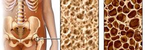 استئوپروز یا پوکی استخوان/دکتر عطا انصاری