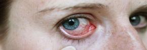 التهابات چشمی/دکتر عطا انصاری