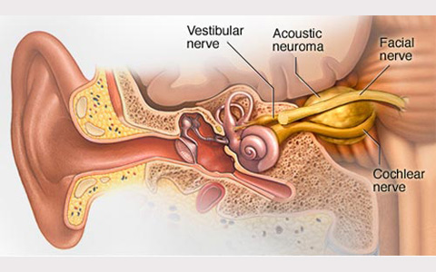 Acoustic-neuroma