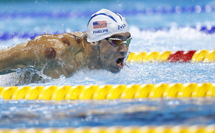 phelps-cupping