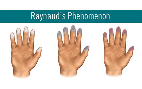 بیماری رینود ـ تغییر رنگ انگشتان دست و پا/ دکتر عطا انصاری