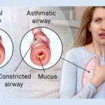 فیبروز کیستیک ـ ۲/ دکتر عطا انصاری