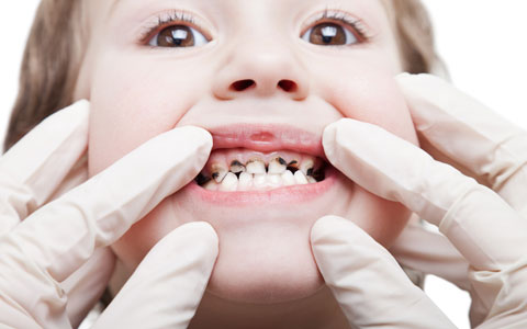 پوسیدگی یا کرم خوردگی دندان/دکتر عطا انصاری