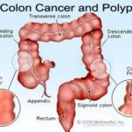 سرطان روده بزرگ/دکتر عطا انصاری