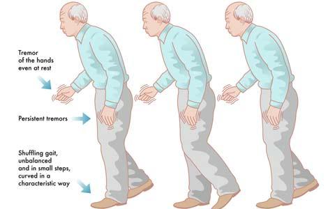 بیماری پارکینسون یا لقوه/دکتر عطا انصاری