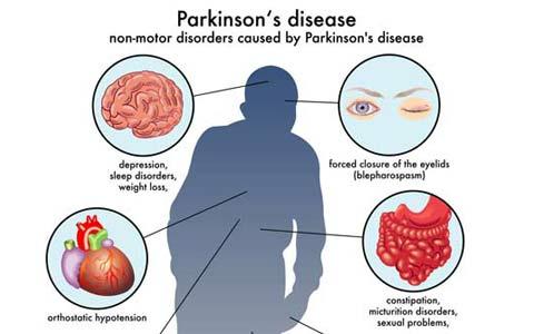 بیماری پارکینسون یا لقوه/بخش دوم/دکتر عطا انصاری