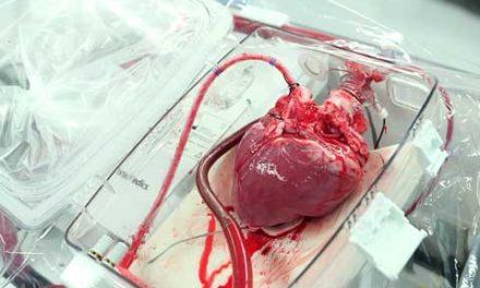 تمدید زنده نگه داشتن قلب خارج از بدن!/دکتر خسرو نیستانی