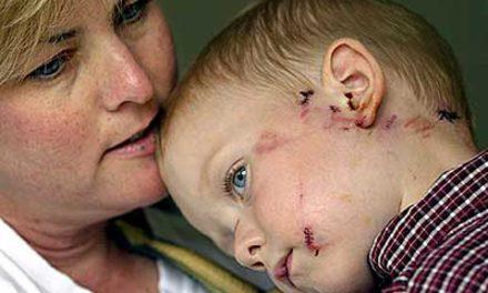 حمله ی کایوتی به پسر بچه ی سه ساله در ونکوور