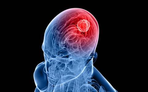 درمان سرطان مغز با ویروس زیکا/دکتر خسرو نیستانی