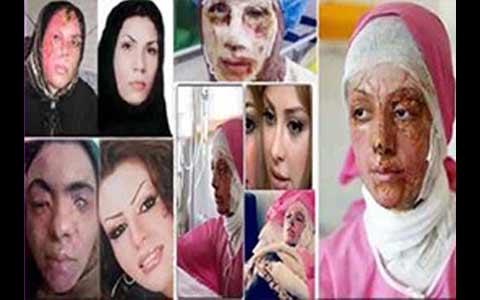 مختومه شدن پرونده اسیدپاشیهای اصفهان بدون پیدا شدن متهم یا متهمان