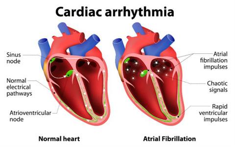 آریتمی؛ اختلال در ضربانات قلب/دکتر عطا انصاری