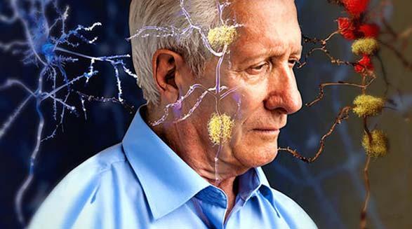 رابطه خواب با آلزایمر و دمانس ها/دکتر خسرو نیستانی