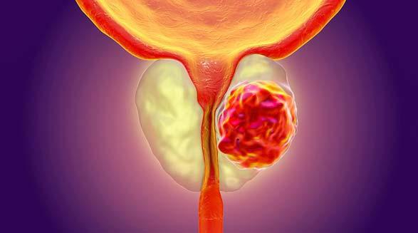 سرطان پروستات/عطا انصاری
